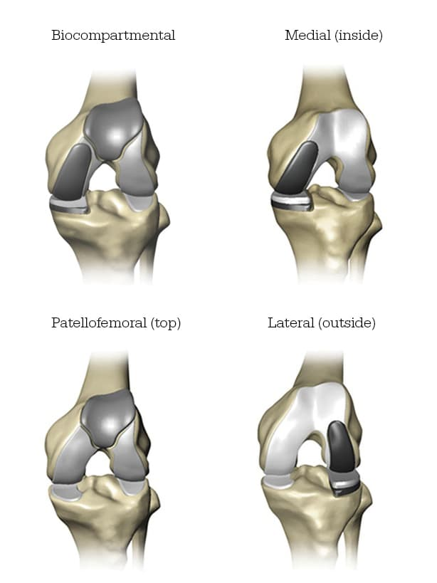 3d model of knee replacement